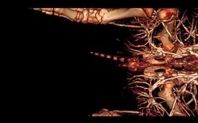 CT Movie of the Vasculature of a Domestic Pig